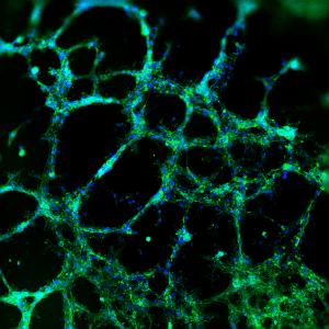 HUVEC tube formation cultured with VitroGel Angiogenesis Assay Kit